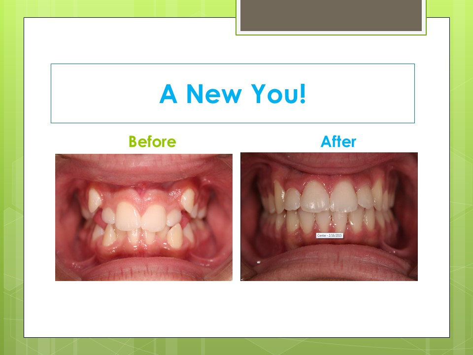 Before After Solomon Orthodontics Killeen And Salado Tx